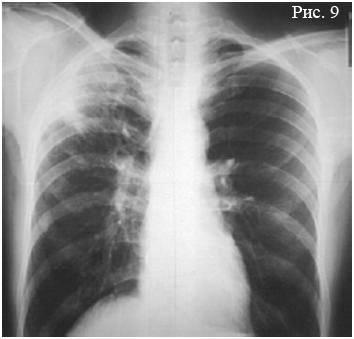 Как отличить рак легкого от туберкулеза