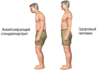 Болезнь бехтерева, или анкилозирующий спондилит – симптомы, причины развития и методы лечения.