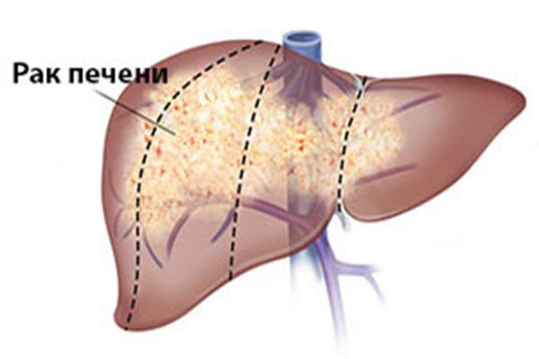 Гемангиома печени: что это, причины возникновения, симптомы, удаление