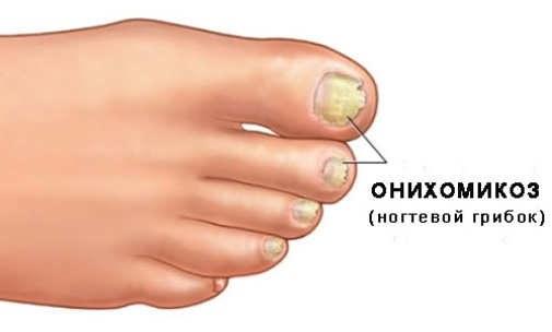 Чем опасен грибок ногтей на ногах если его долго не лечить