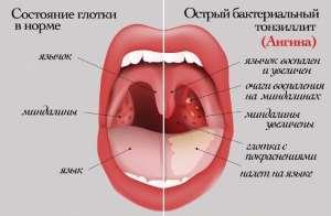 Воспаление гланд и миндалин в горле у взрослых и детей: симптомы, причины, лечение, фото
