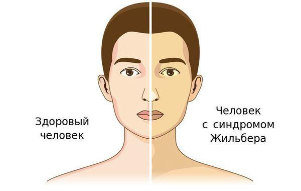 Синдром жильбера – что это такое простыми словами? болезнь жильбера – симптомы, лечение