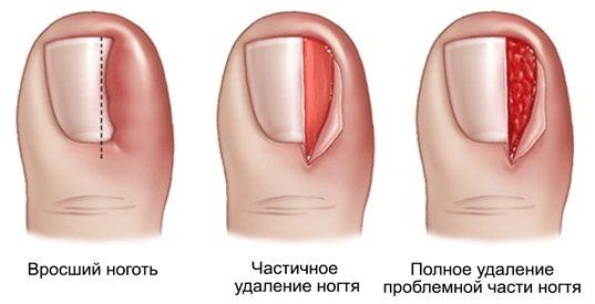 Как удалить ноготь на пальце ноги: вросший, пораженный грибком