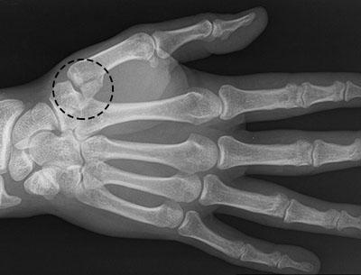 Ушиб лучевой кости руки симптомы - диета, классификация, признаки заболевания, средства