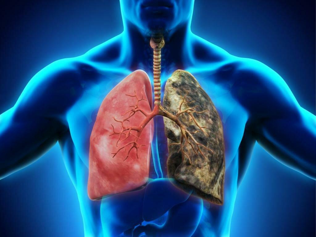 Фиброз легких – что это такое, опасно или нет? легочный фиброз – лечение, продолжительность жизни