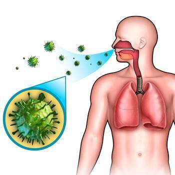 Причины, симптомы и лечение вирусной пневмонии у взрослых пациентов