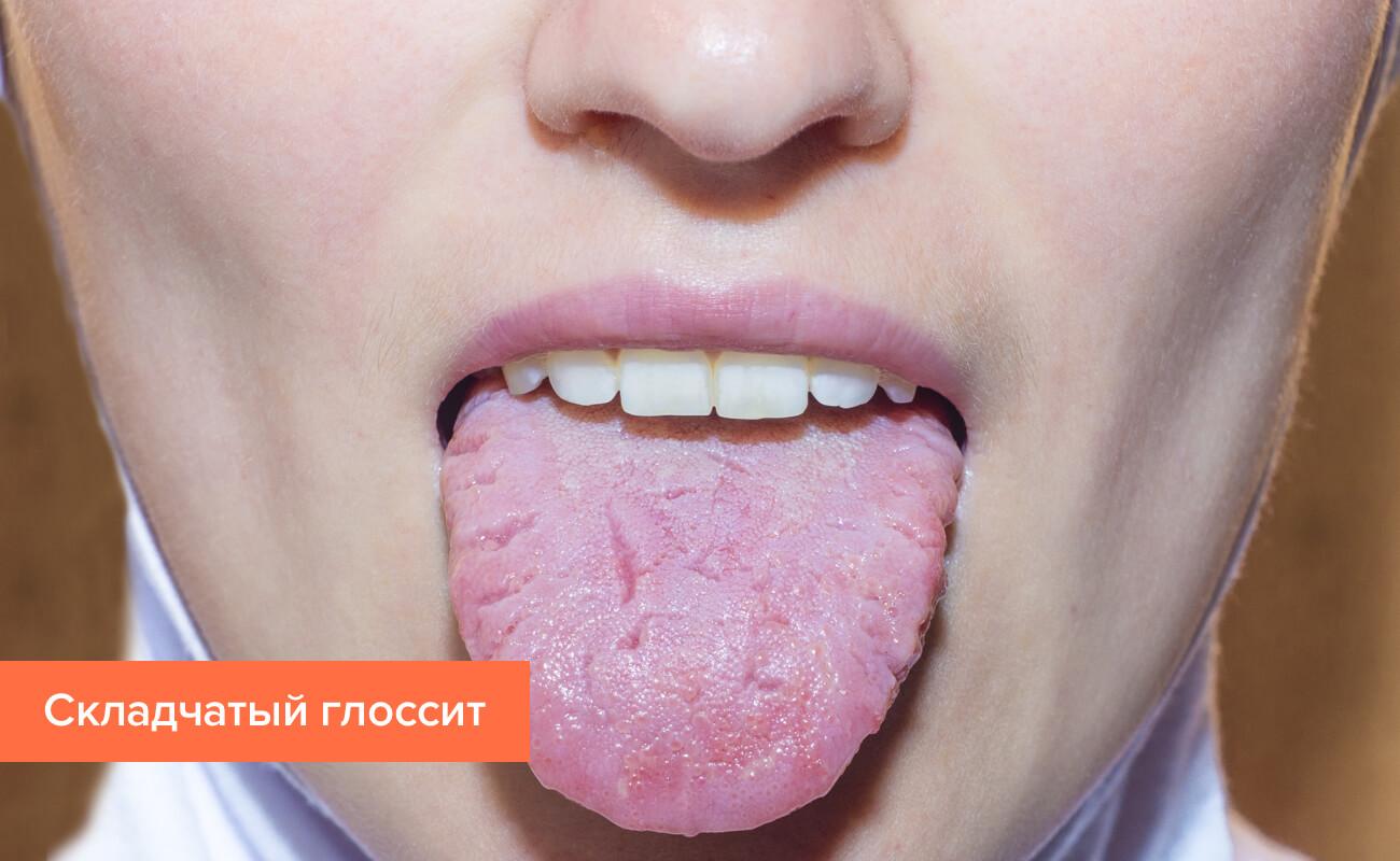 Глоссит языка - лечение, симптомы, фото. особенности лечения глоссита в домашних условиях