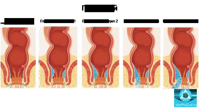 Анальный зуд – симптомы, лечение, фото.