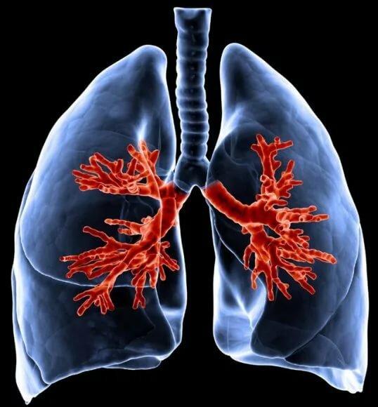 Симптомы пневмонии у взрослого. лечение пневмонии