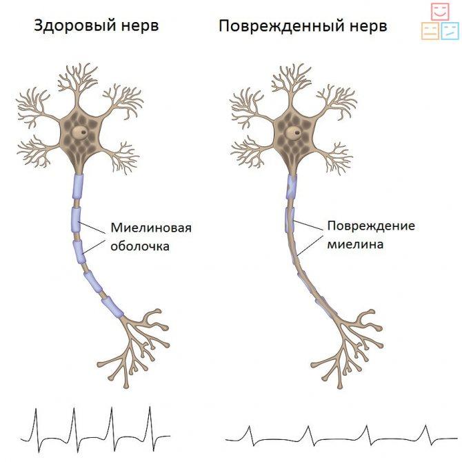 Диабетическая полинейропатия нижних конечностей: как распознать и вылечить?