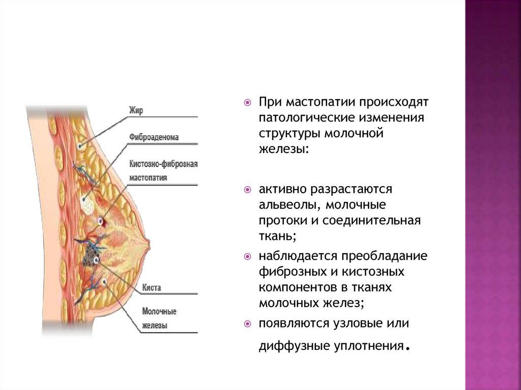 Признаки диффузной фиброзно-кистозной мастопатии: симптомы данной патологии молочных желез, причины развития заболевания, а также об опасных последствиях и осложнениях