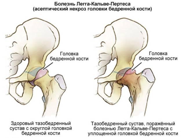 Болезнь легга-кальве-пертеса