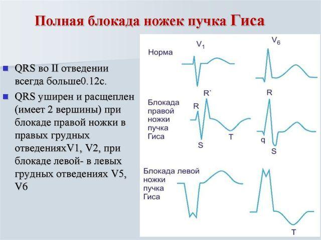 Неполная блокада пнпг на экг: не обращать внимание или обследоваться у кардиолога?