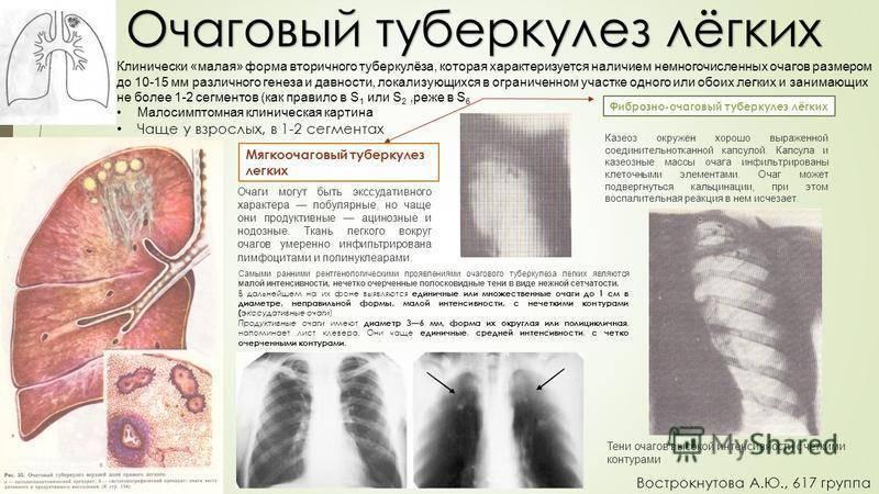 Лечение от туберкулеза в домашних условиях – можно ли вылечить дома