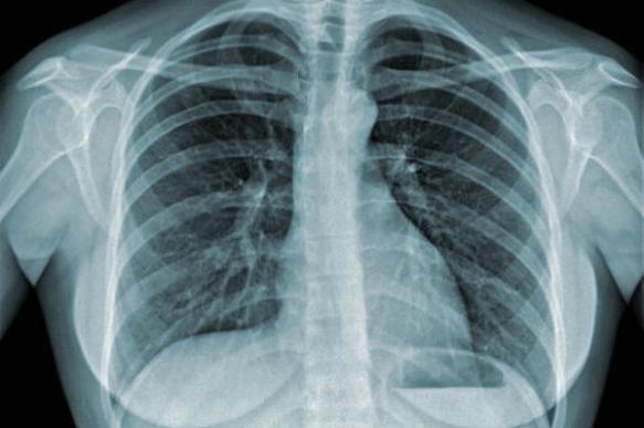 Фиброз легких: формы, причины и методы лечения