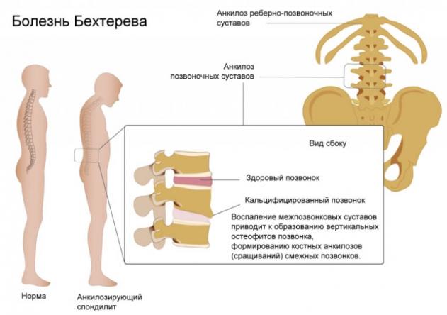 Анкилозирующий спондилит (болезнь бехтерева) - причины, патогенез, симптомы, диагностика, лечение, прогноз