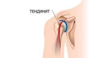 Воспаление сухожилий — тендинит: лечение, что это такое, причины и симптомы патологии