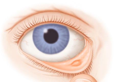 Халязион век у ребенка: лечение холязионов на глазу, как правильно лечить по доктору комаровскому