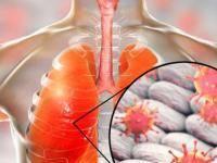 Атипичная пневмония: симптомы без температуры, лечение недуга