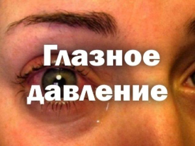 Если внутриглазное давление в норме может ли быть глаукома