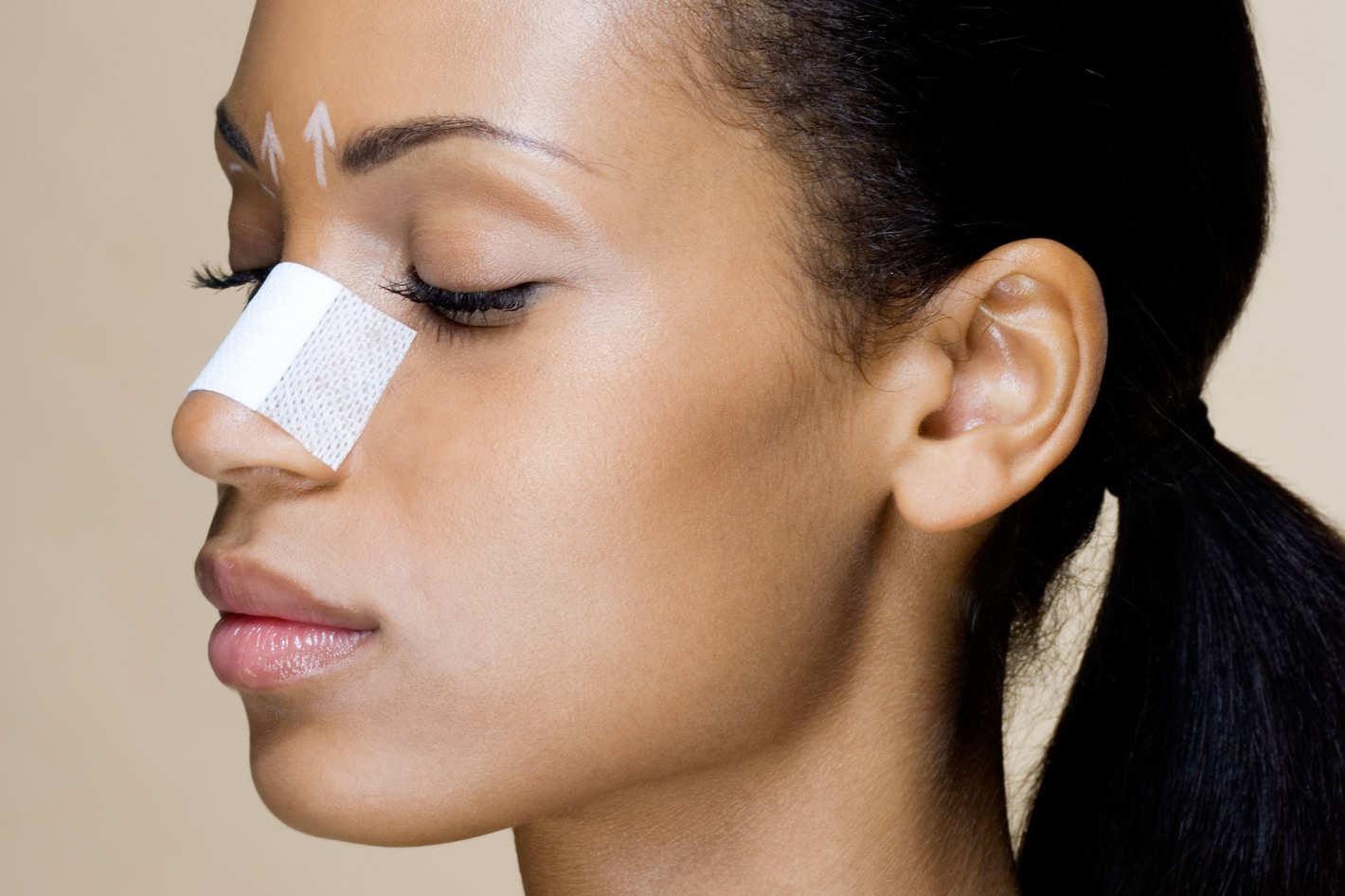 Риносептопластика – эффективная операция по исправлению формы носа и носовой перегородки
