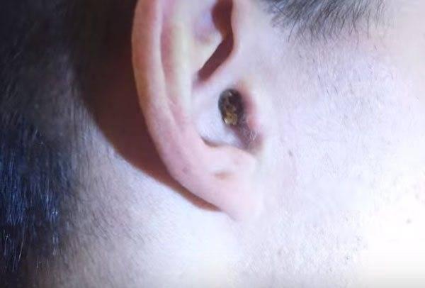 Можно ли убрать серную пробку в ушах в домашних условиях