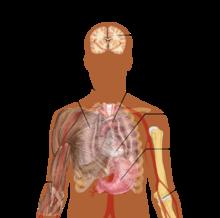На что указывает боль в спине при пневмонии и как распознать болезнь?