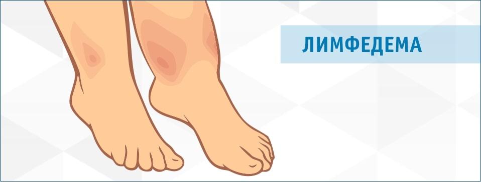 Лимфостаз – причины, симптомы, диагностика и лечение