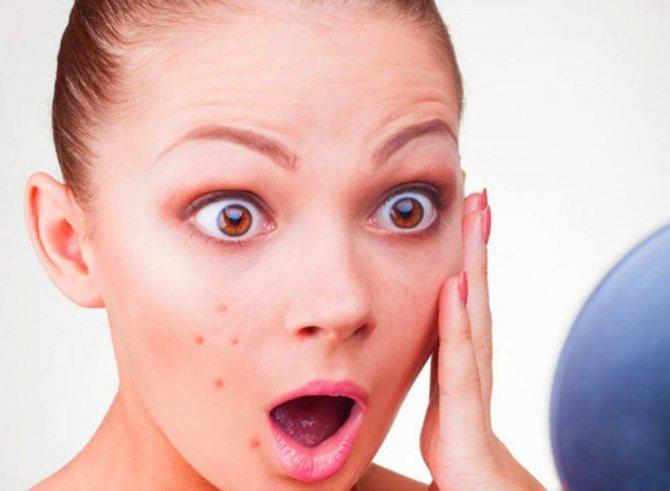 Прыщи на шее. причины появления прыщей на шее. методы лечения и профилактики