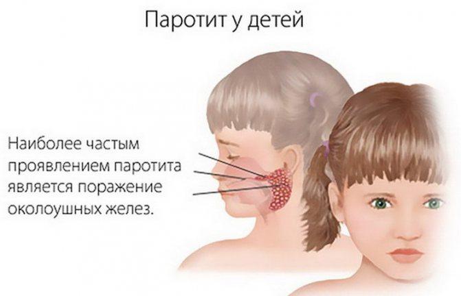 Эпидемический паротит - причины, симптомы, лечение, профилактика