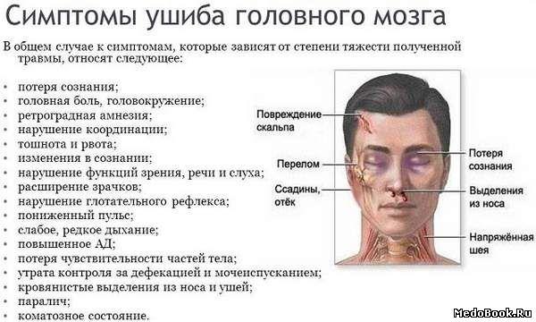 Сотрясение мозга – причины, симптомы, диагностика, типы сотрясений и лечение сотрясений мозга. !