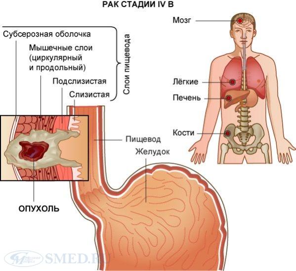 Питание после операции рака пищевода и желудка