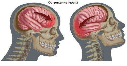 Методика определения сотрясения мозга дома