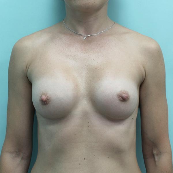 Маммопластика (пластика груди)