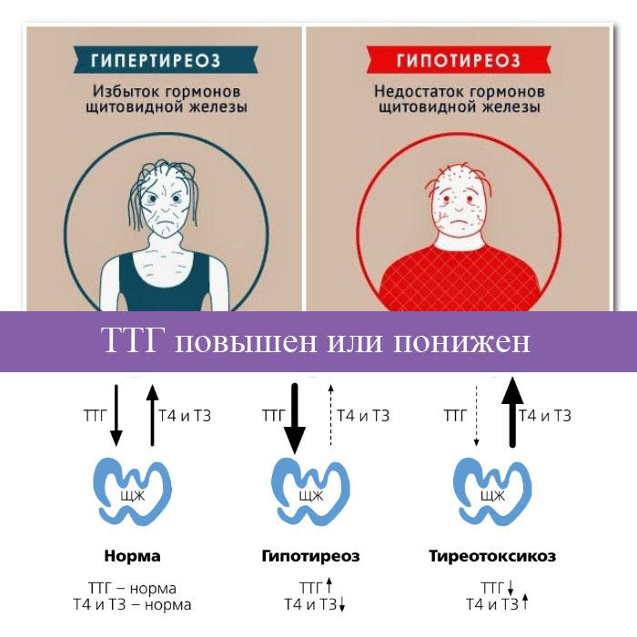 Функциональность щитовидной железы ттг, т3 и т4