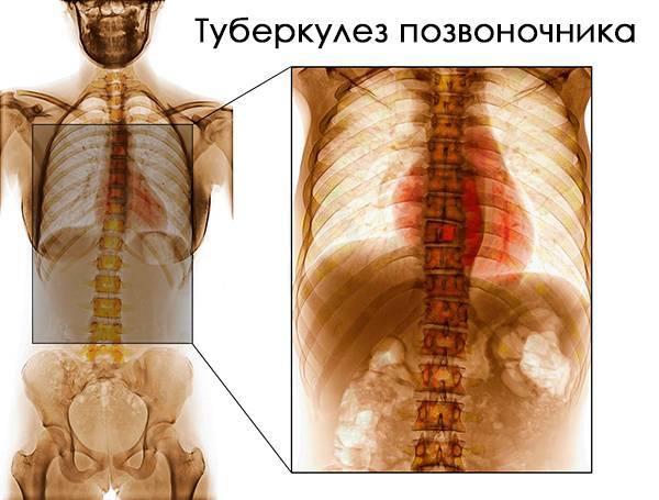 Посттуберкулезные изменения легких: что это такое, причины и лечение