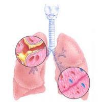 Показатели средней продолжительности жизни при пневмосклерозе легких