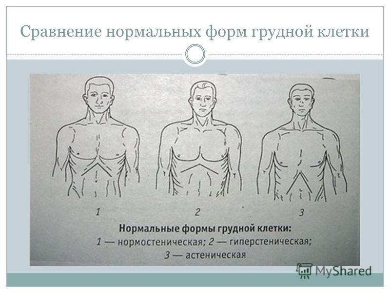 Пороки развития грудной клетки