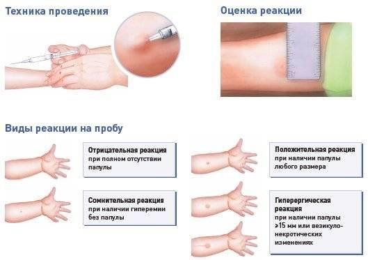 Манту или рентген: преимущества и недостатки методов, выбор