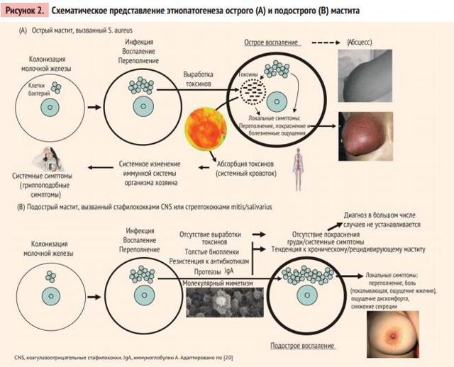 Мастит. симптомы, причины, диагностика и лечение болезни :: polismed.com