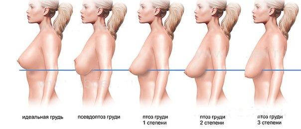 Обвисшая грудь: все о птозе молочных желез