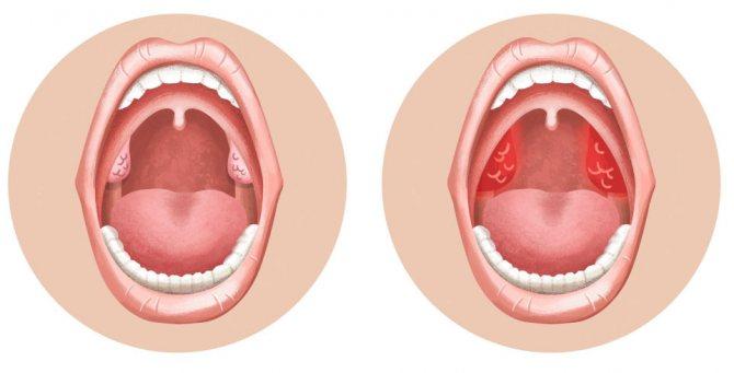 Воспаление гланд: методы лечения