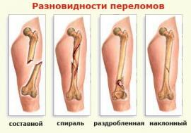Диета при переломах костей ног