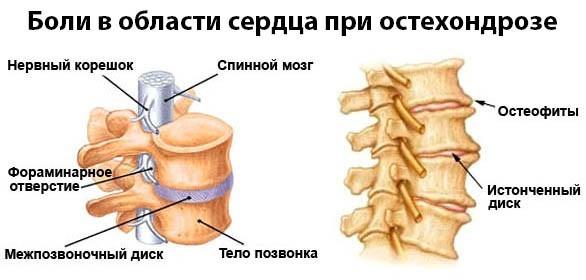 Кардиалгия описание симптомов болезни