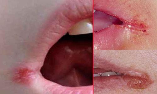 Чем и как лечить заеды на губах