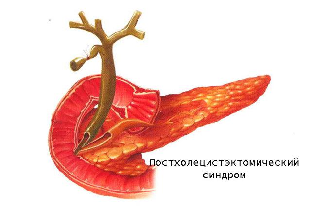 Диета для восстановления желудка и кишечника, меню на неделю