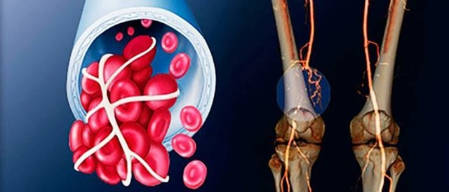 Окклюзия: причины заболевания, основные симптомы, лечение и профилактика