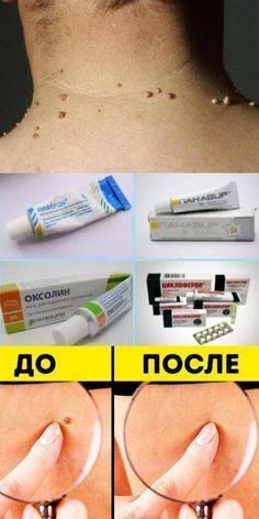 Отомикоз: лечение препаратами грибковой инфекции – лучшие мази и капли