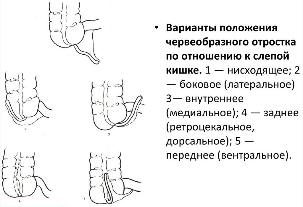 Аппендицит
