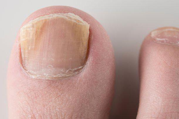Фундизол от грибка ногтей: отзывы, цена, аналоги
